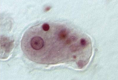 NHSOA-4-pillars-of-health-parasites-1a